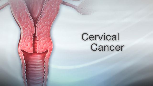 Genital warts | UF Health, University of Florida Health