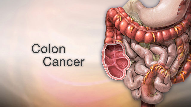 Shands hospital jacksonville fl renal cancer
