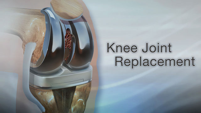 Knee joint replacement | UF Health, University of Florida Health